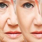 5 façons de traiter les rides de votre visage